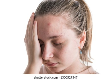 Acne problem concept.  Upset teen girl with problematic skin posing on a white background.