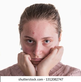 Acne problem concept. Upset teen girl with problematic skin posing on a white background
