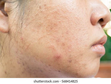 Acne problem on the skin face