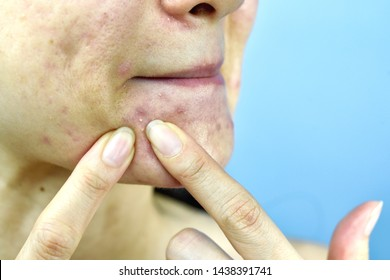Acne pus, Close up photo of acne prone skin problem, Woman squeezing pimple with dirty bare hands, Removing whitehead acne from face and left lesion scar.