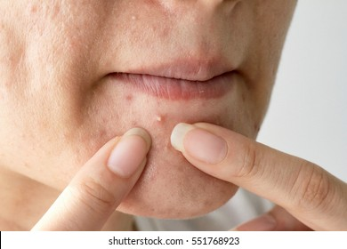 Acne pus, Close up photo of acne prone skin, Woman squeezing her pimple, Removing pimple from her face.