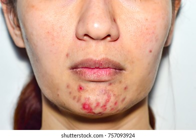 Acne pus, Macro shot of acne prone skin. Acne skin because the disorders of sebaceous glands productions.Girl with problematic skin and scars.Skin care and facial acne treatment in the adulthood time.