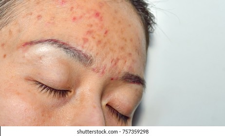 Acne pus, Macro shot of acne prone skin. Acne skin because the disorders of sebaceous glands productions.Girl with problematic skin and scars. Skin care and facial acne treatment