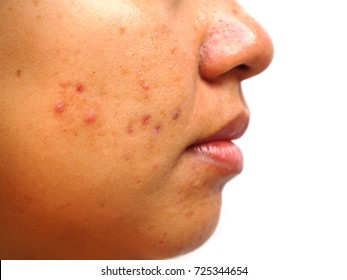 Acne scar on woman face, facial scar, melasma skin, skin problem, beauty concept