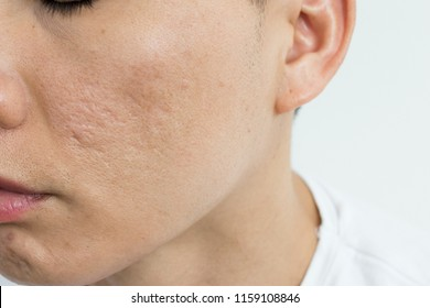 Acne scars on Asian man' face. Close up for large pores skin and deep acne scars.