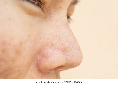 Acne scars and pores. In the nose Black spots, wrinkles and skin problems