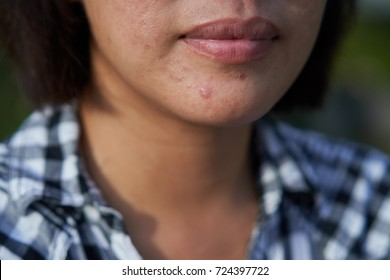 Acne , Acne scars,  sweat on the woman chin area.