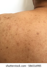 Acne Skin Dark Spots and Scar on Back of Body