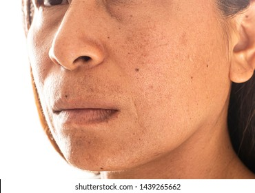Acne skin on face woman,problem skin. macro. Women problem skin with blemish and spots. Asian women with dry and bad skin. Thai women.