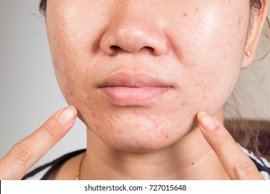 Acne skin on face woman,skin problem