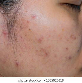Acne and acne spot on oily face skin of Asian woman. Concept before acne treatment and face laser treatment for get rid of dark spot post-acne. Closed comedones and open comedones on facial skin.