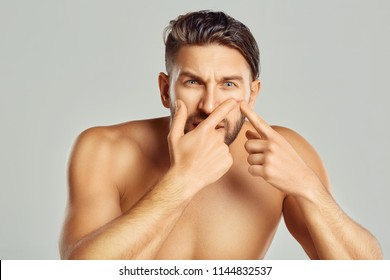 Acne spot pimple spot skincare beauty care male pressing on skin problem face. Young man squeezing her pimple, removing pimple from her face. Man skin care concept.