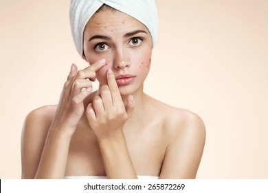 Acne spot pimple spot skincare beauty care girl pressing on skin problem face. Woman with skin blemish isolated, beige background. Beautiful young Caucasian female model