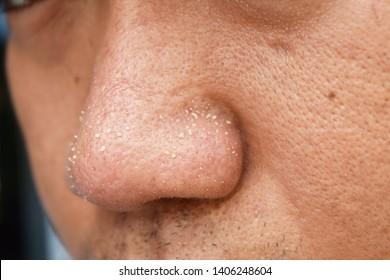 acne vulgaris on nose of asian man