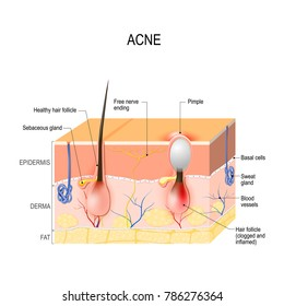 Acne vulgaris or pimple. healthy hair follicle and clogged pore. This leads to the redness and inflammation associated with pimples. skin disease