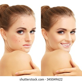 Acne.Portrait of beautiful girl  with problem and clear skin