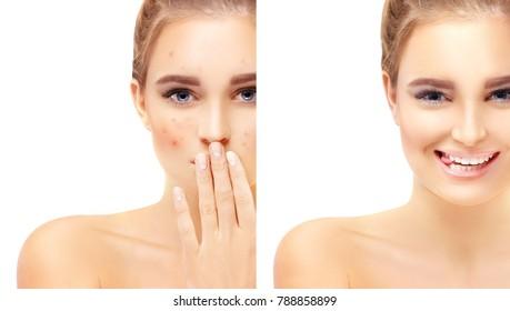 Acne.Post-Acne Marks /Treating Acne Scars