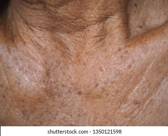 actinic keratosis and seborrheic keratosis on collarbone and neck be an existing spot, freckle change color, size or shape cause by ultraviolet (UV) light damaging the DNA in skin cells.