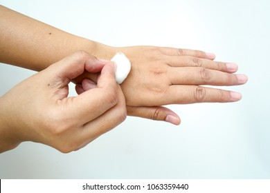 The action of cleaning the hand skin by using the cotton.