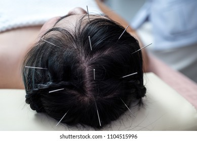 Acupuncture to the head .hair Glabrous