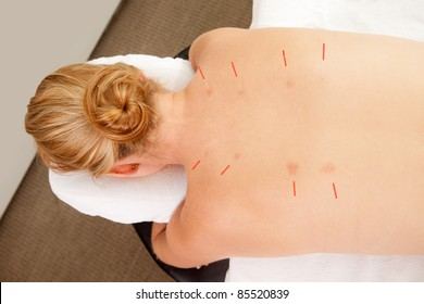 Acupuncture needles along Back Shu points on patients back