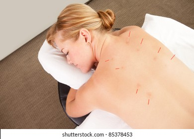 Acupuncture patient with needles along Back Shu points, showing good signs of redness