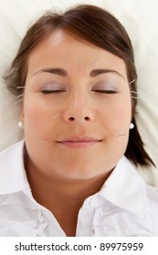 Acupuncture patient undergoing a facial beauty treatment