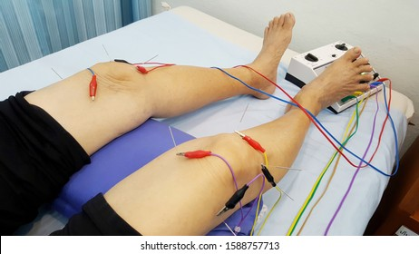 Acupuncture, put the pin to drill skin at the knee and connect with the electric wave.