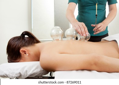 Acupuncture therapist placing a cup on the back of a female patient