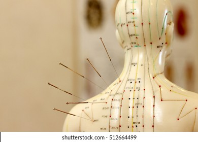 acupuncture in the therapy of pain