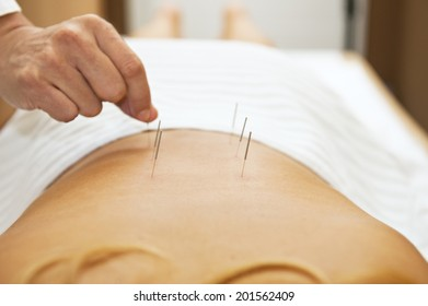 Acupuncture therapy/Acupuncture therapy