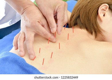 Acupuncture treatment, Chinese medical healthcare