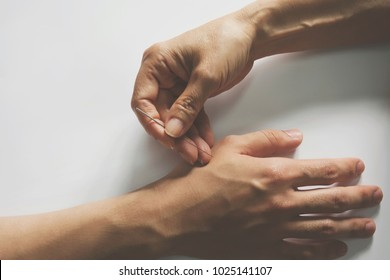 Acupuncture treatment on patient hand.