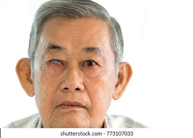 Acute angle glaucoma on right eye and normal eye on left of old asian man.