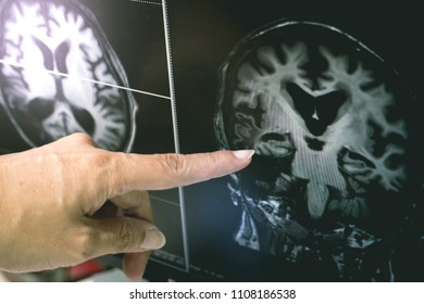 AD with CVD  white matter change