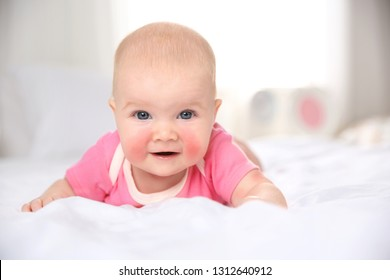Adorable little baby with allergy lying on bed at home