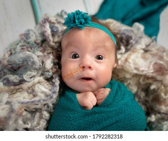 Adorable tiny three month old Trisomy 18 special needs infant girl with nasogastric tube for feeding