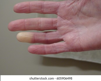 Adult hand with Raynaud's Syndrome / Phenomenon.