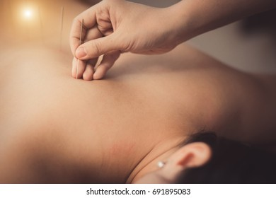 Adult male physiotherapist is doing acupuncture on the back of a female patient. Patient is lying down on a bed and is covered with royal blue towels.