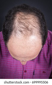 Adult man in his forties having hair loss problem. Results of medical treatment