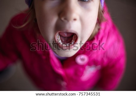 Adult Permanent Teeth Coming Behind Baby Stock Photo Edit Now