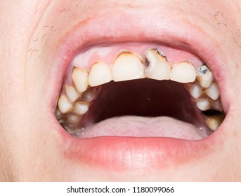 adult teeth with caries black holes spoiled for medicine
