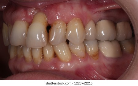 adult teeth whith periodontitis