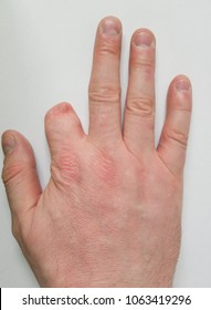 Adult white Caucasian male with a partially amputated left hand index finger.