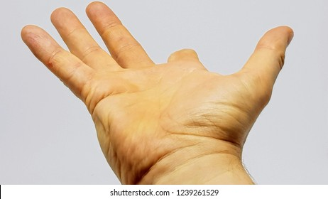 Adult white male with partial amputation to the right index finger.