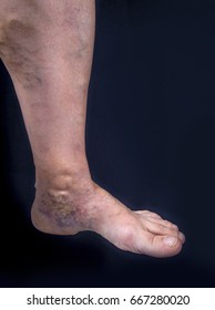 Adult woman foot with varicose veins on dark background