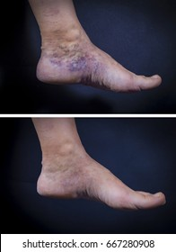 Adult woman foot with varicose veins before and after treatment on dark background