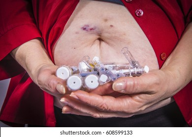 Adult woman holding syringes from diabetic therapy with bruises on her stomach. Medical concept