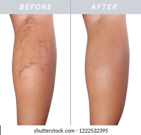 Adult woman leg with varicose veins before and after treatment isolate on white