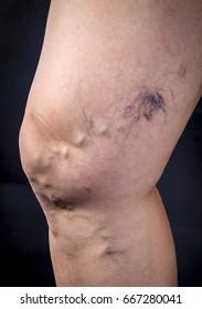 Adult woman leg with varicose veins on dark background